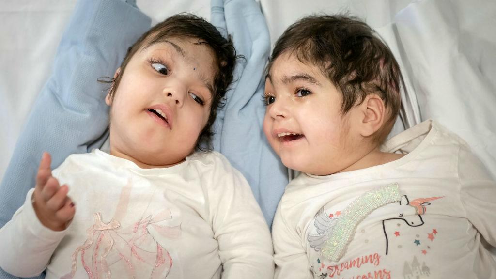 Szafa Marva Ullah sziámi ikrek