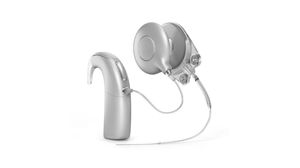 hallásjavító implantátum