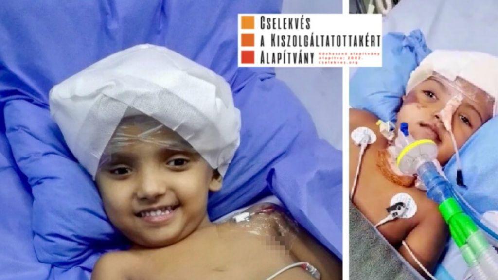 bangladesi sziámi ikrek rabeya rukaya