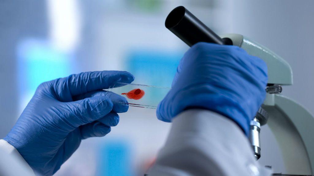 hiv aids teszt