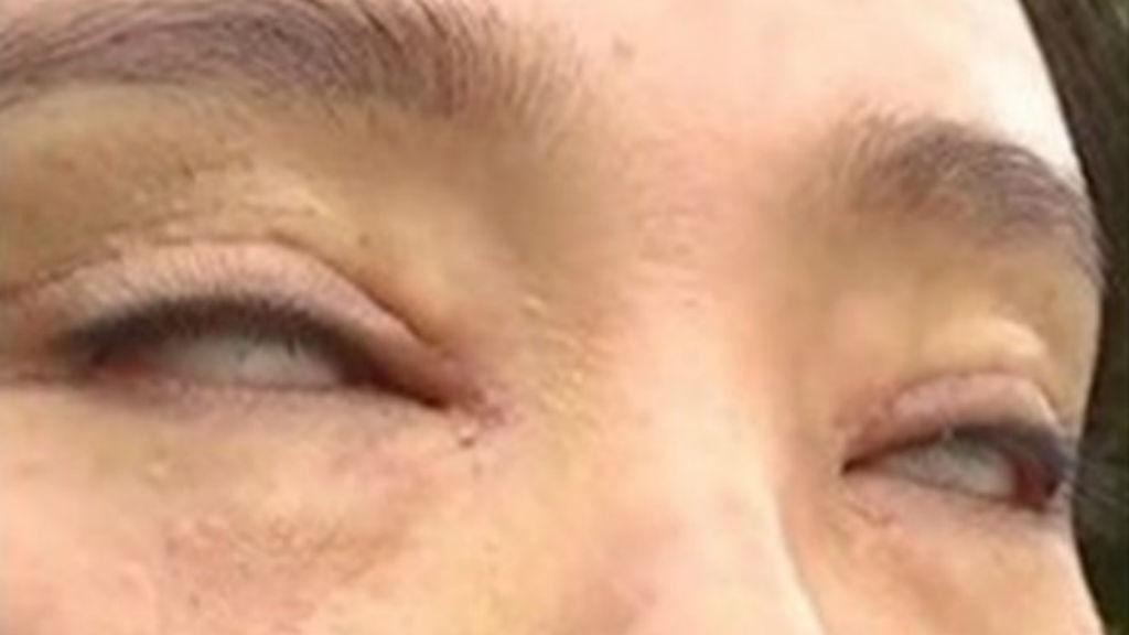 elrontott-szemhejplasztika