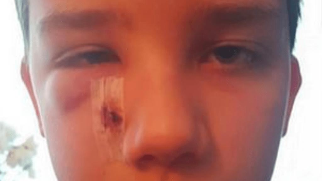 iskolai zaklatás verés autizmus
