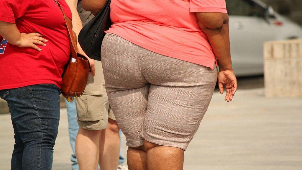 elhízás, túlsúly, kövérség