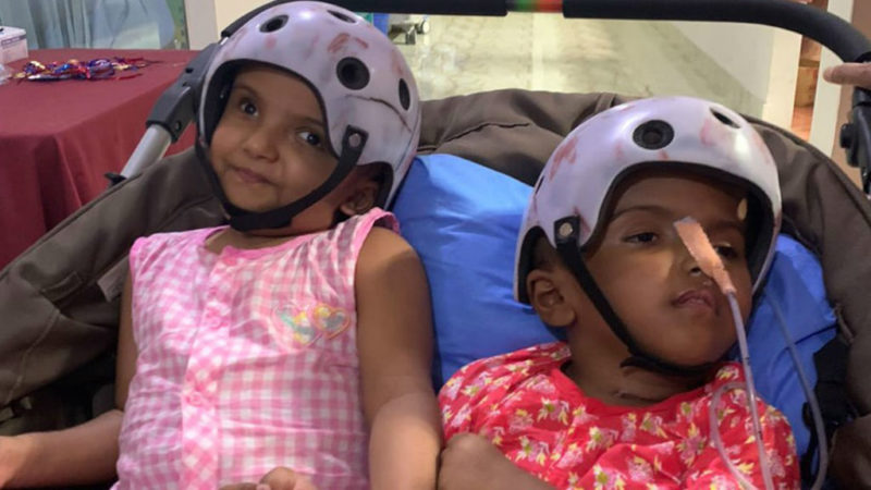 Rabeya Rukaya bangladesi sziámi ikrek