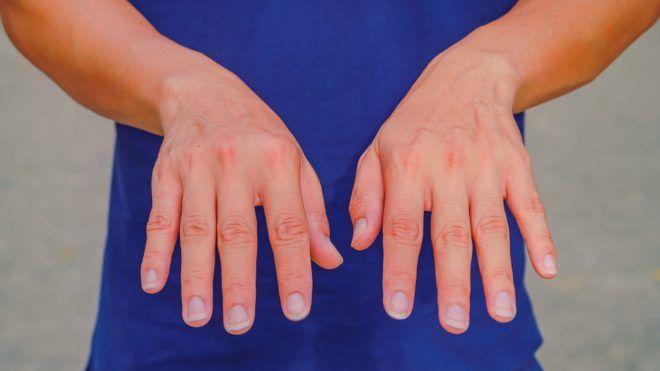 kéz állapot