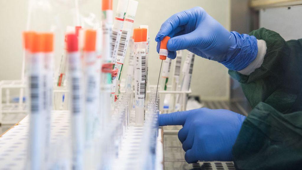 koronavírus, kutatás