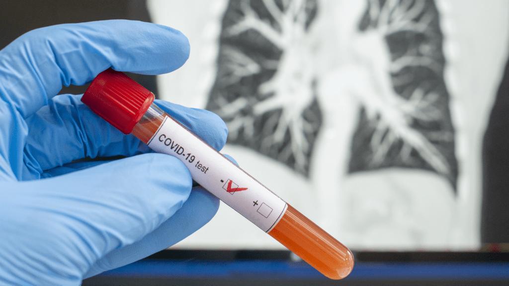 koronavírus teszt