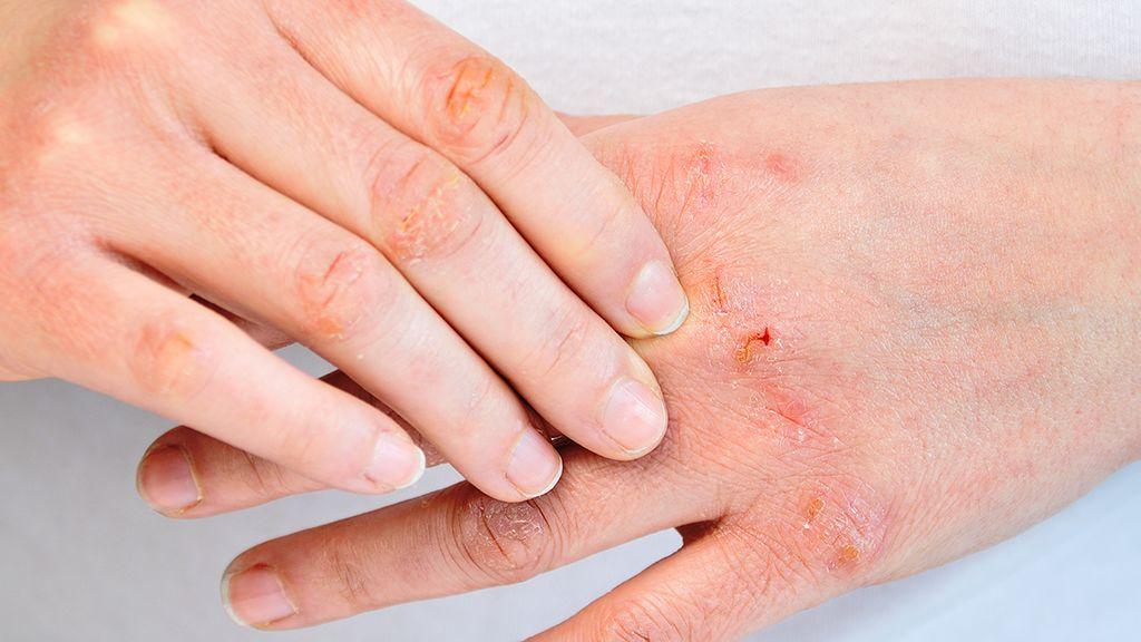 A kézfertőtlenítőktől kiszáradt kezeket is rendbe tehetik a Krémmánia Magazin által kiválogatott kézkrémek. (Illusztráció: Cunaplus_M.Faba)