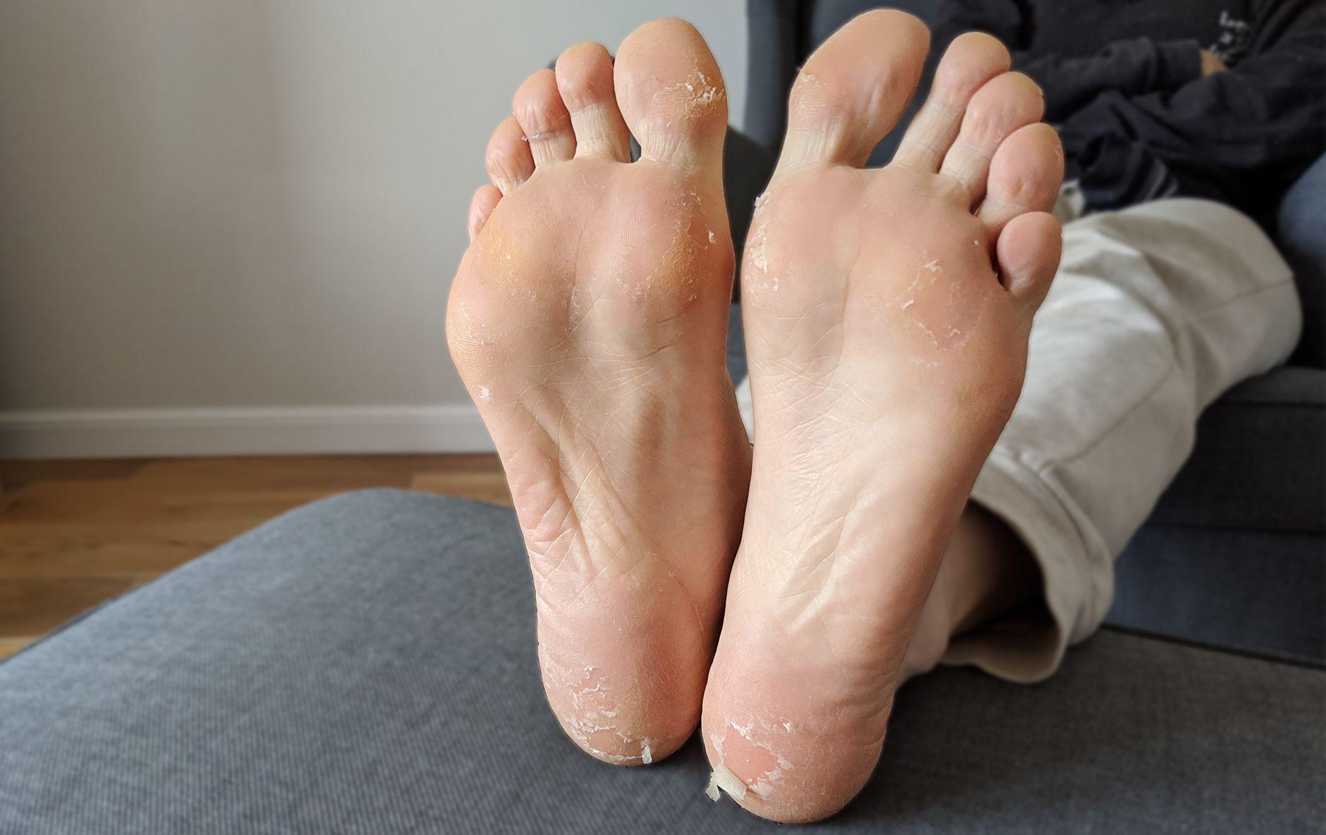 Így nézett ki a talpam a hámlasztó zokni használatát követő 7. napon.