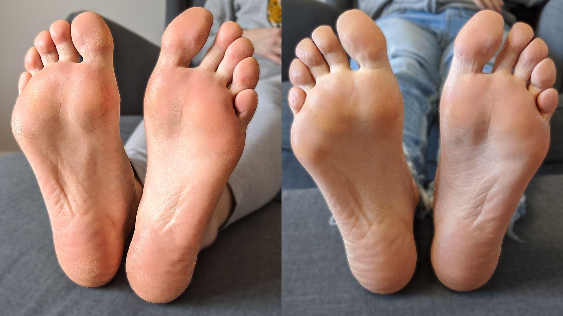 Talphámlasztás előtt és után: ennyit változott talpaim állapota a hámlasztó zokni használatától.
