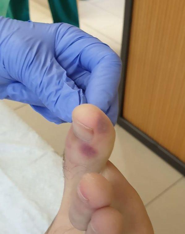 A lábunkon tűnhet fel a koronavírus első tüntete
