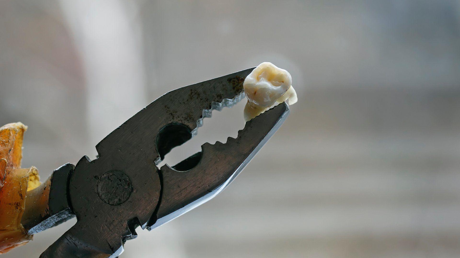 kombinált fogóval kihúzott fog