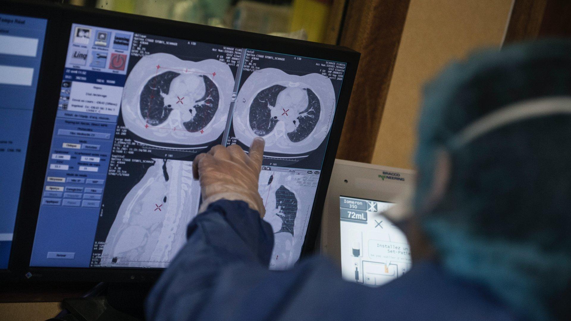 koronavírus röntgen