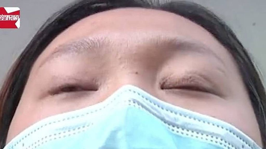 Elbaltázott műtéte után nem tudja becsokni a szemét ez a nő