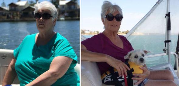 Linda első csípőműtétje után kezdett drasztikus fogyókúrába.