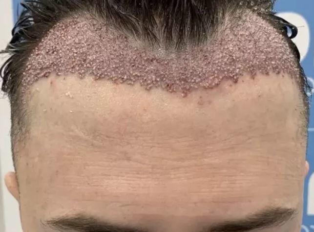 hajbeültetés beavatkozás hiba önbizalom