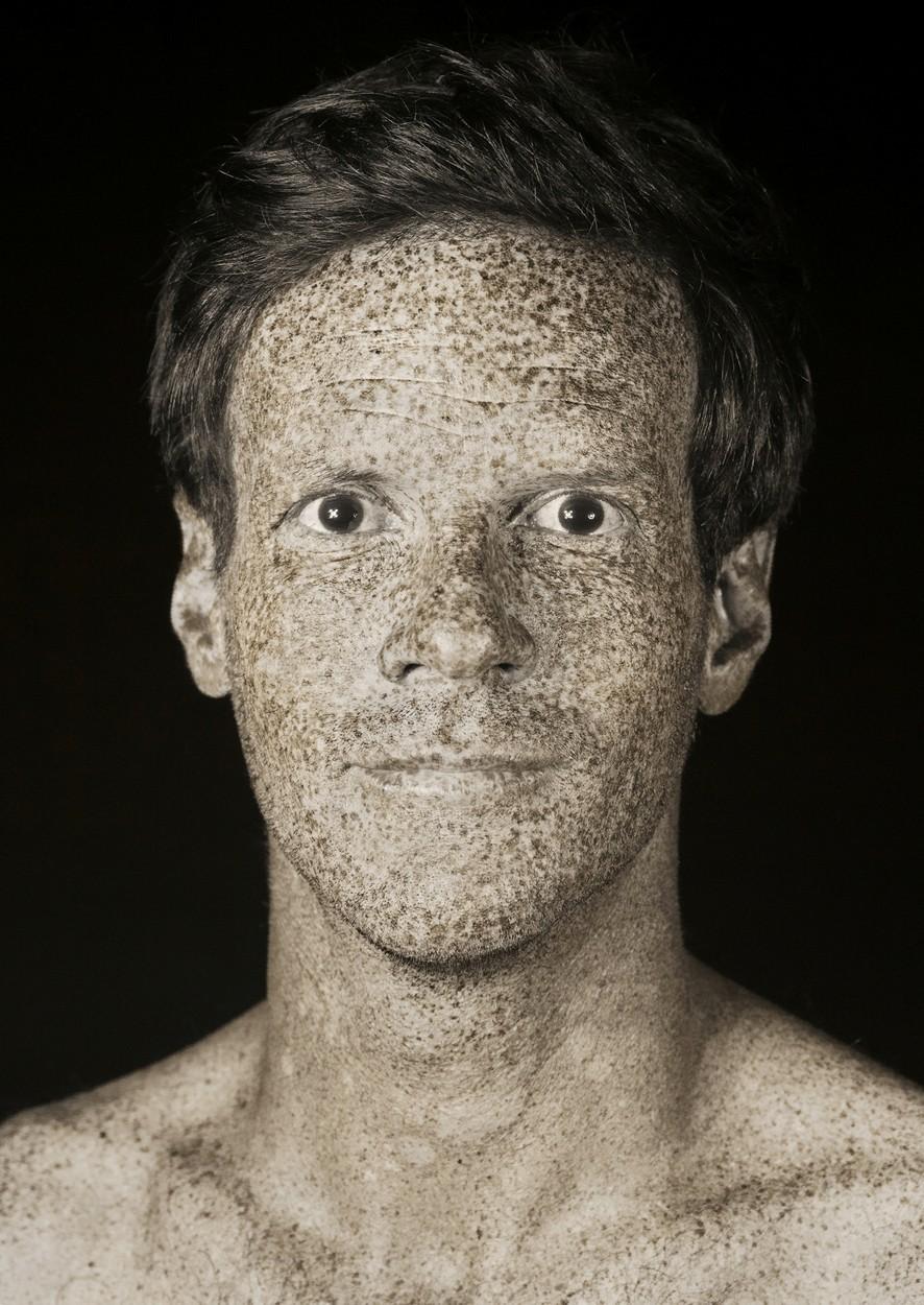 Férfi UV fotója - a basalioma nemtől függetlenül kialakulhat.