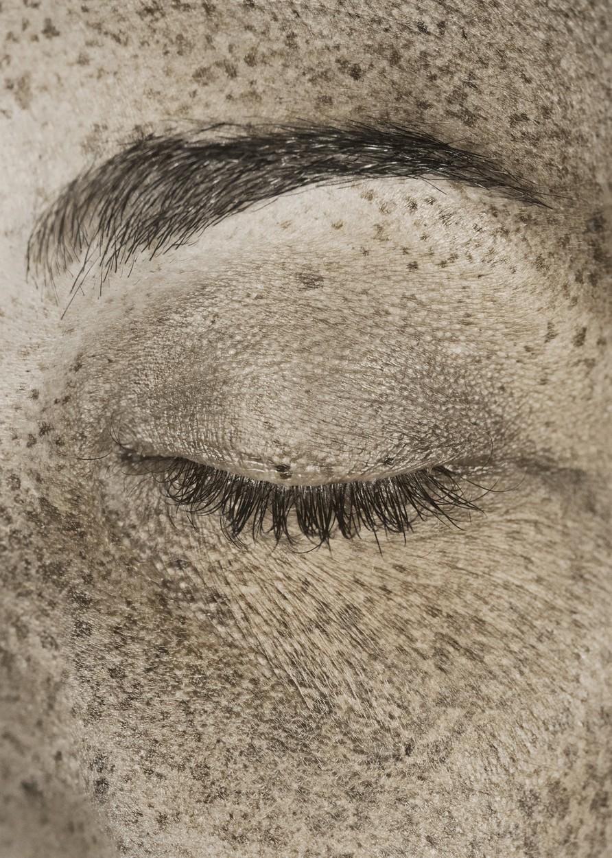 Közeli fotó egy nő szemkörnyékéről, melyet uv kamerával készítettek. Jól látszódnak az UV-sugárzás káros hatásai.