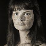 Az UV kamerával készült fotók jól mutatják az UV-sugárzás okozta foltokat, melyek gyakran rendes fényben láthatatlanok a számunkra.