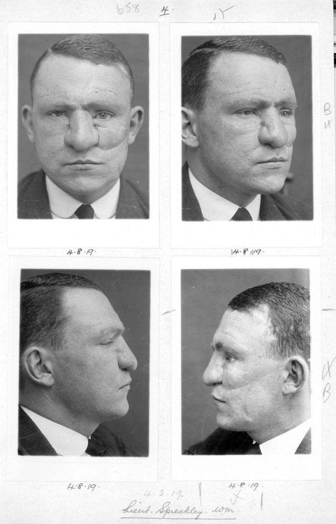 Az első arcplasztikát sebesült katonákon végezték el