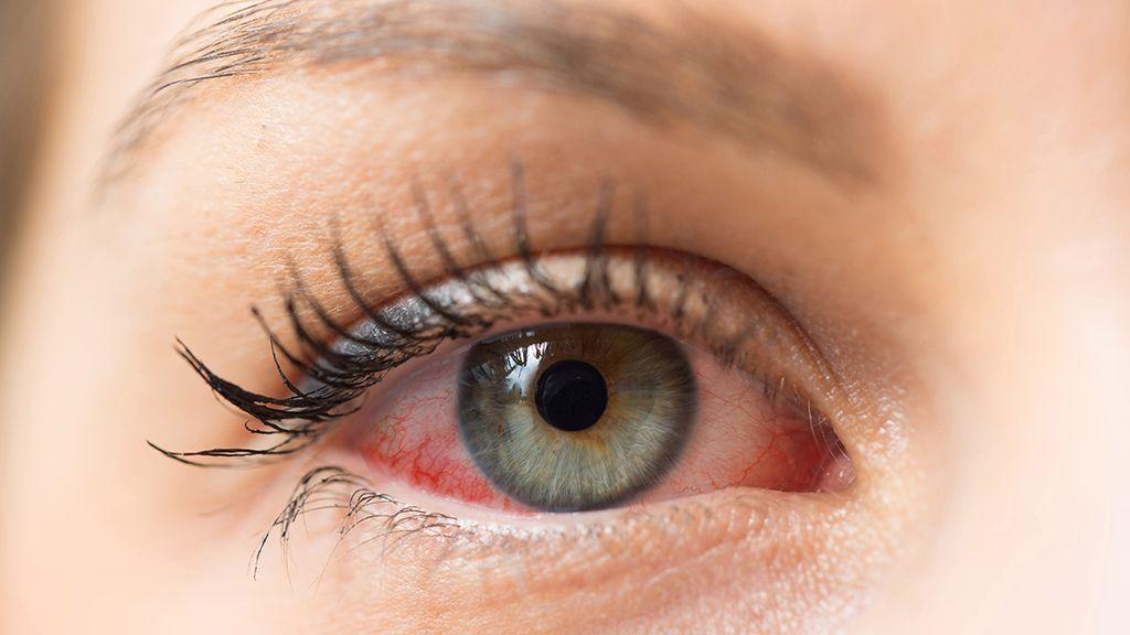 Allergiásan használhatom a kontaktlencsémet? (x)