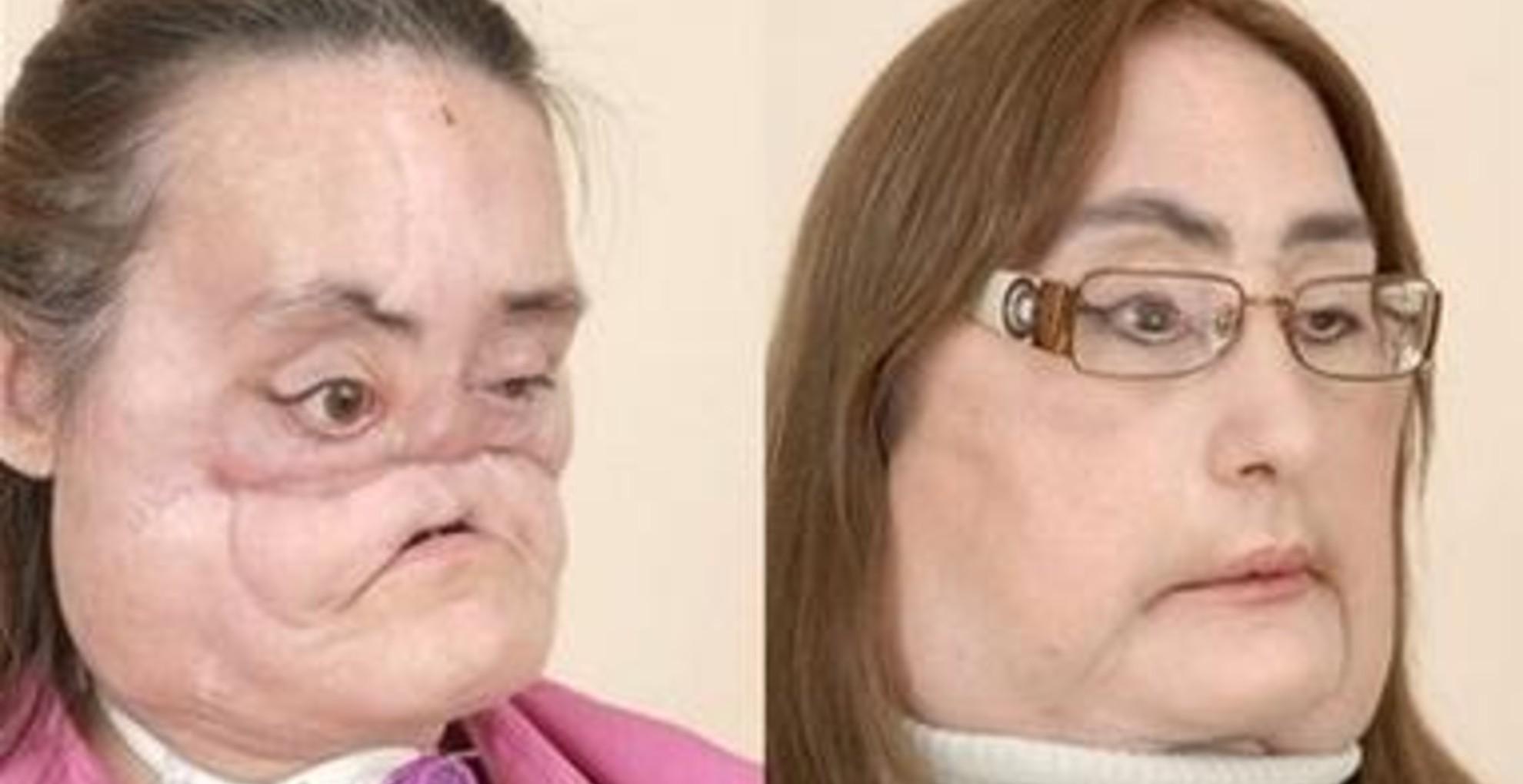 Meghalt az Egyesült Államok első arctranszplantáción átesett betege