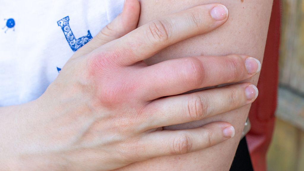 A darázscsípés veszélyes is lehet (Fotó: GettyImages)