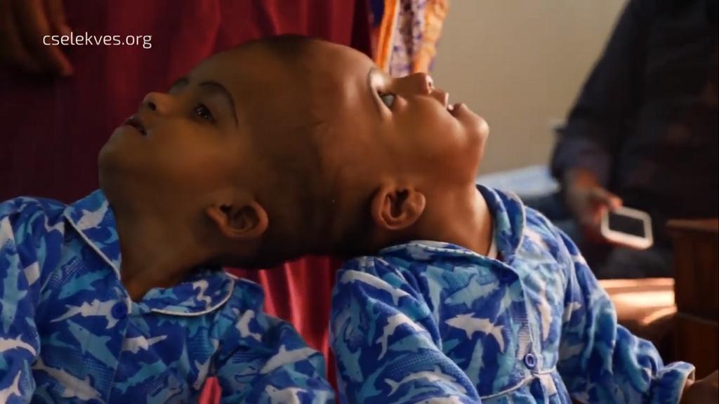 Dokumentumfilmet készítettek a bangladesi sziámi ikreket szétválasztó magyar orvosokról