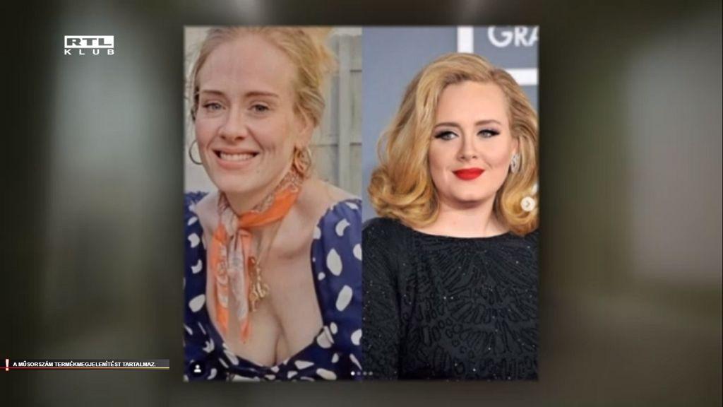 Adele újabb sokkoló fotót posztolt