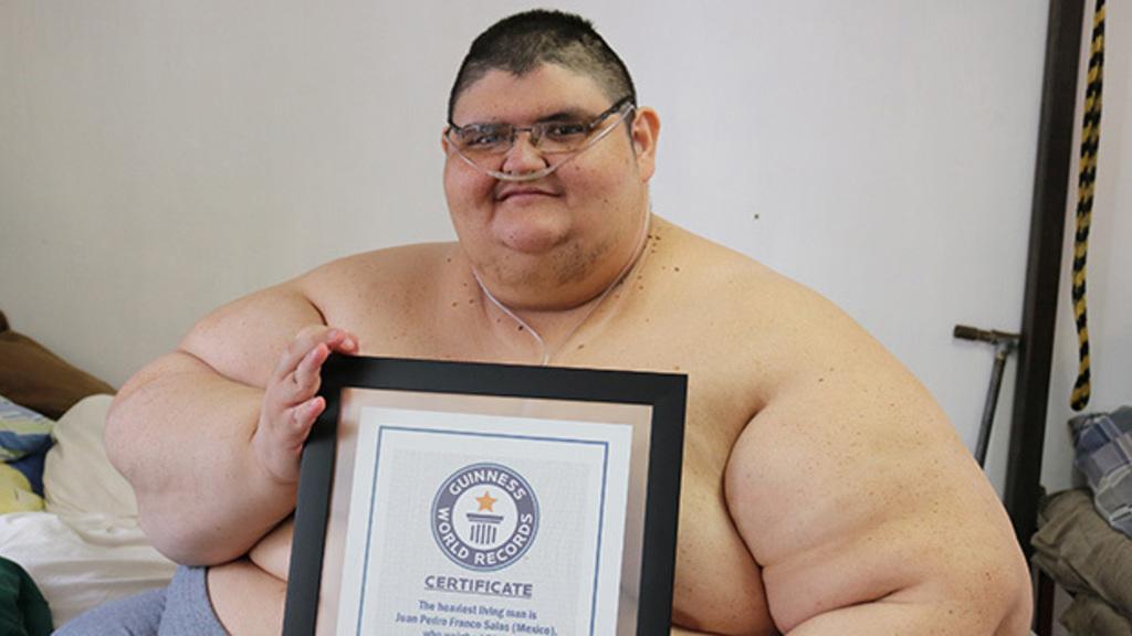 Juan egykor a világ legkövérebb embere volt (Fotó: //www.gastricbypassmexico.com/)