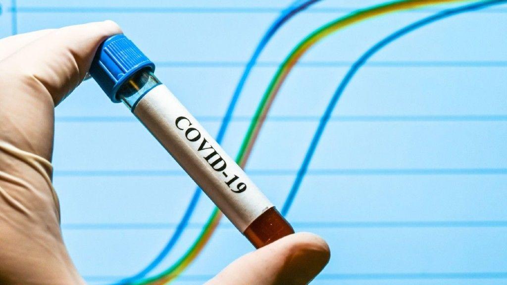 Koronavírus: Keveset tesztelnek itthon