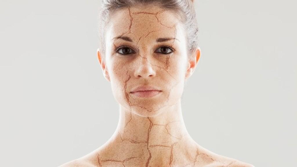 Száraz bőr és ami a hátterében áll