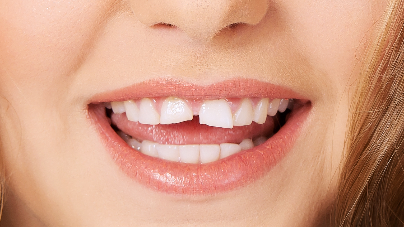 Törékenyek a fogaid?