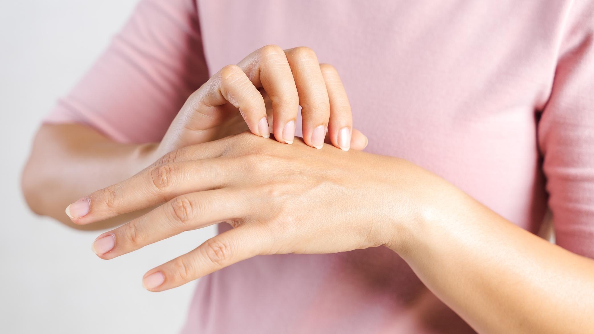 Mitől száraz a kezem?