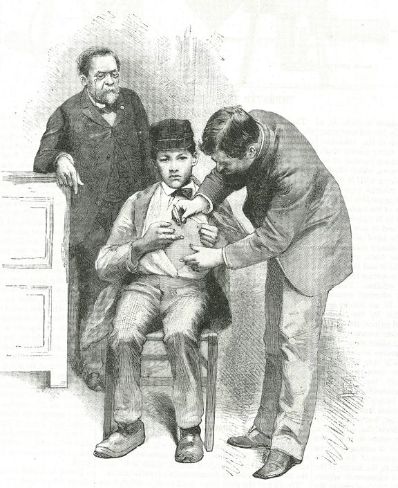 Louis Pasteur (1822-1895) beadja első veszettség elleni oltását a fiúnak, akit egy kutya harapott meg. Szerencsésen túlélte. (Photo by: Photo12/Universal Images Group via Getty Images)