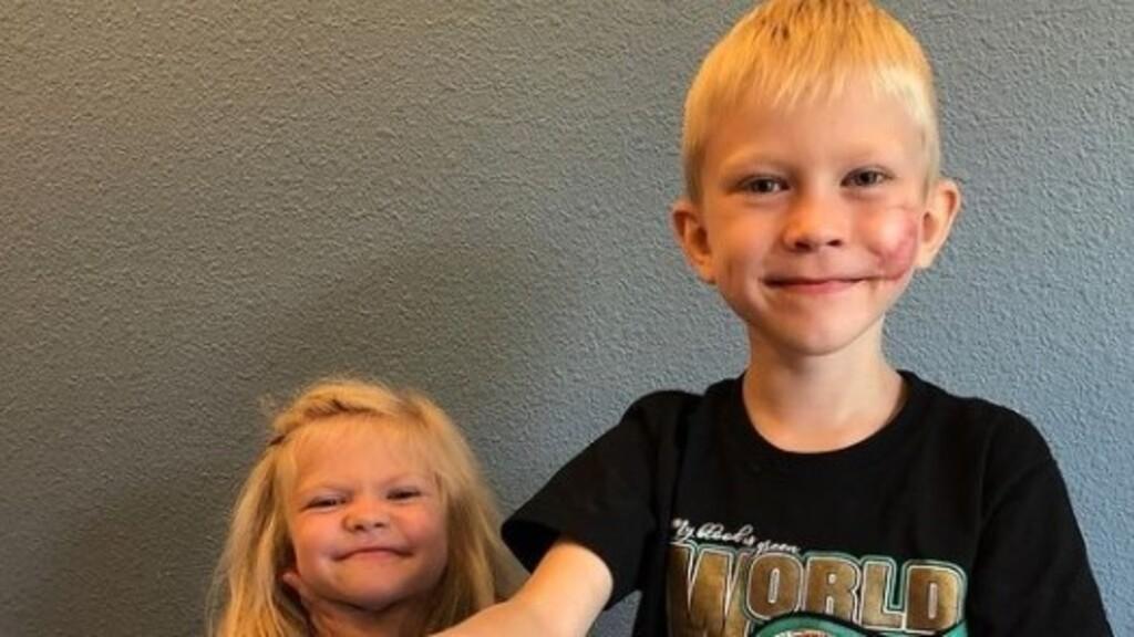 Helyreállító műtéten esett át a húgát megmentő hatéves, hős kisfiú