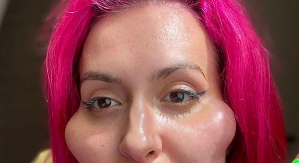 Anastasiia Pokreshchuk, arcműtét