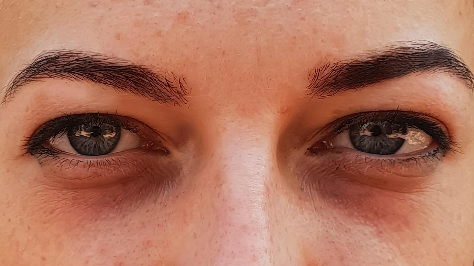 Karikás szemek