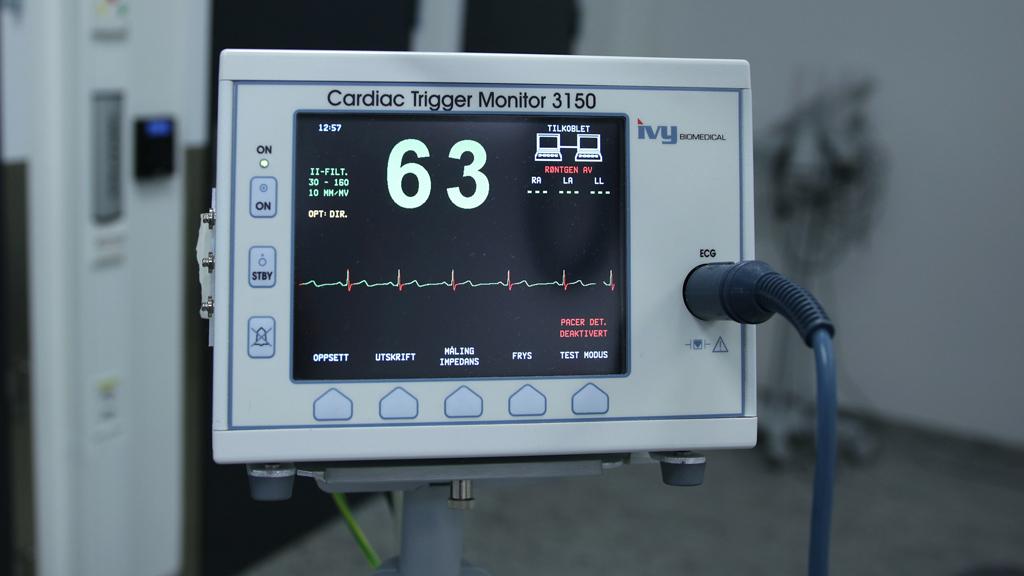szívmonitor