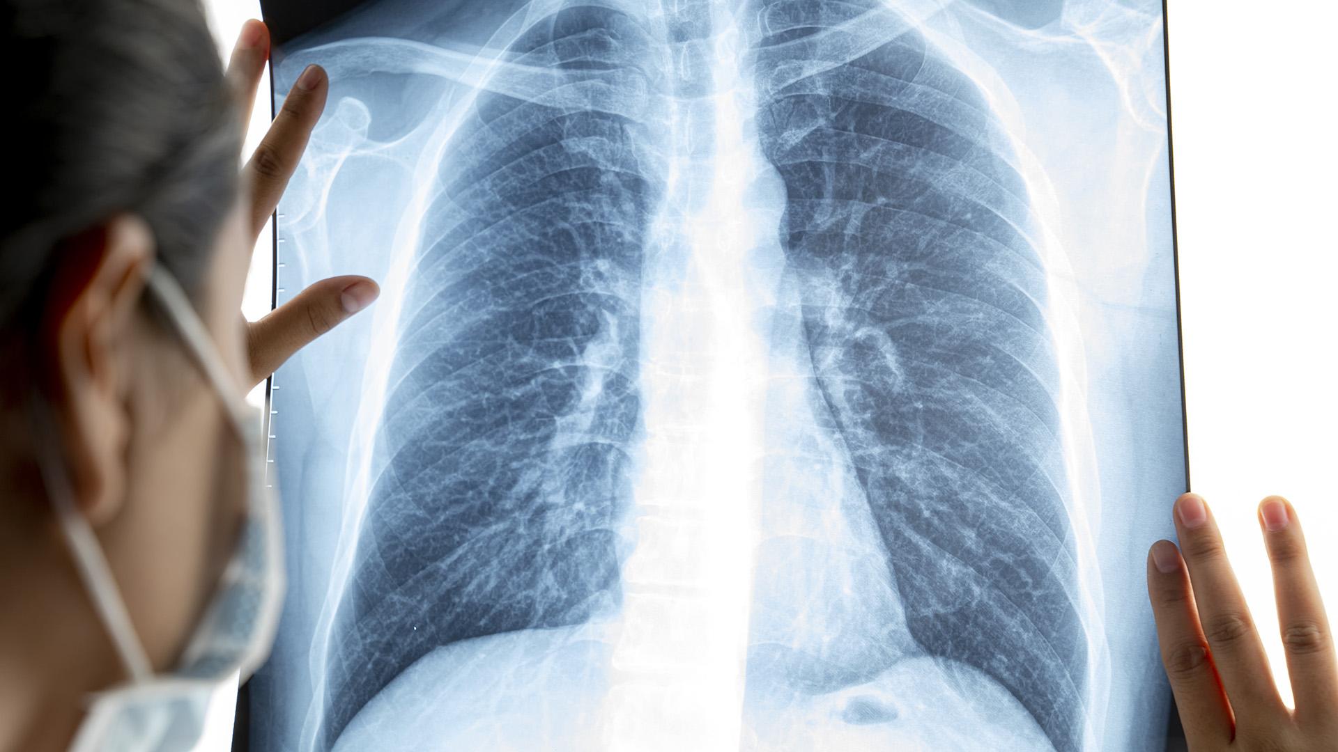 Ezekkel a légzőgyakorlatokkal rehabilitálhatják magukat a covid-fertőzöttek