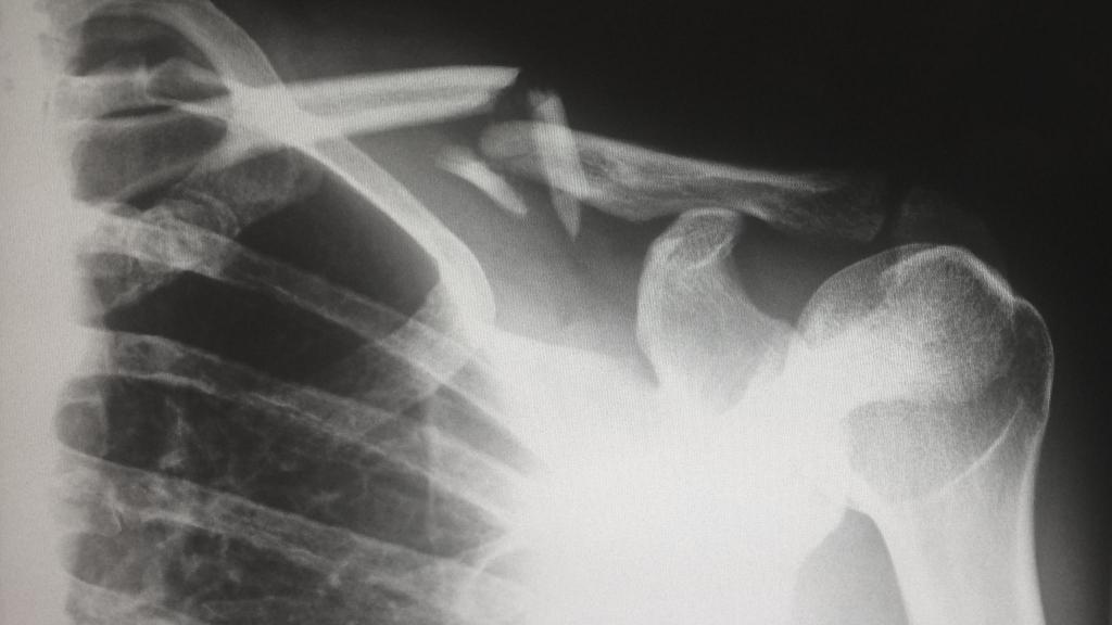 Egy rutin röntgenvizsgálat során derült ki, hogy egy penge fúródott a mellkasába