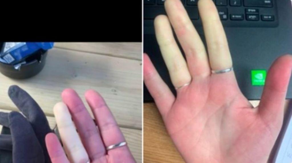 rendellenesség, kéz
