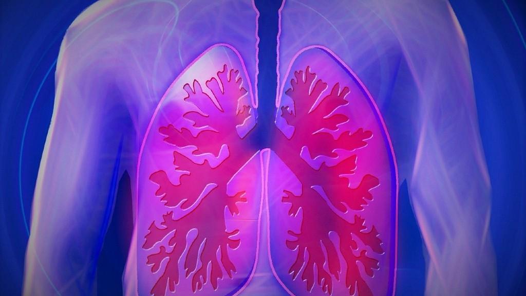 A Covid-19 a tüdőre kiemelten veszélyes (fotó: Pixabay)