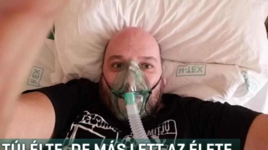 10 napig volt lélegeztetőgépen
