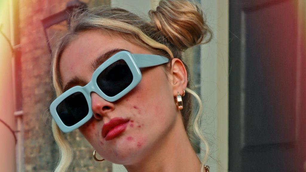 Pattanásos modellek a H&M hirdetésében