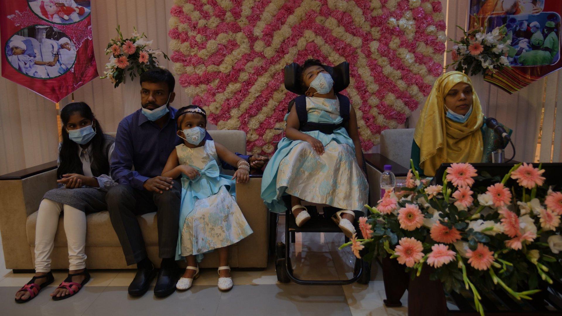 Szétválasztott bangladesi sziámi ikrek