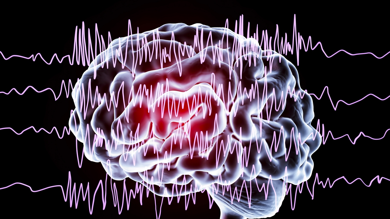 Nem segítettek időben a főnökei az epilepsziás férfin, belehalt a rohamba