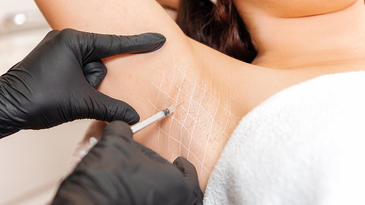 Izzadásgátlás botox injekcióval