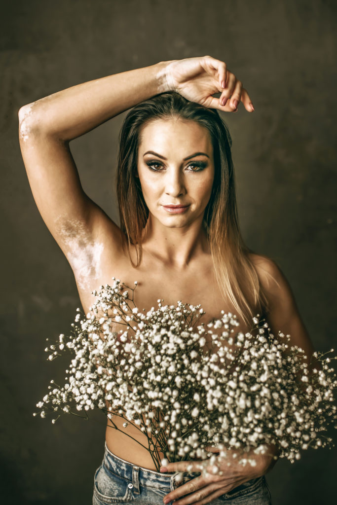 Vitiligoval a modelliparban
