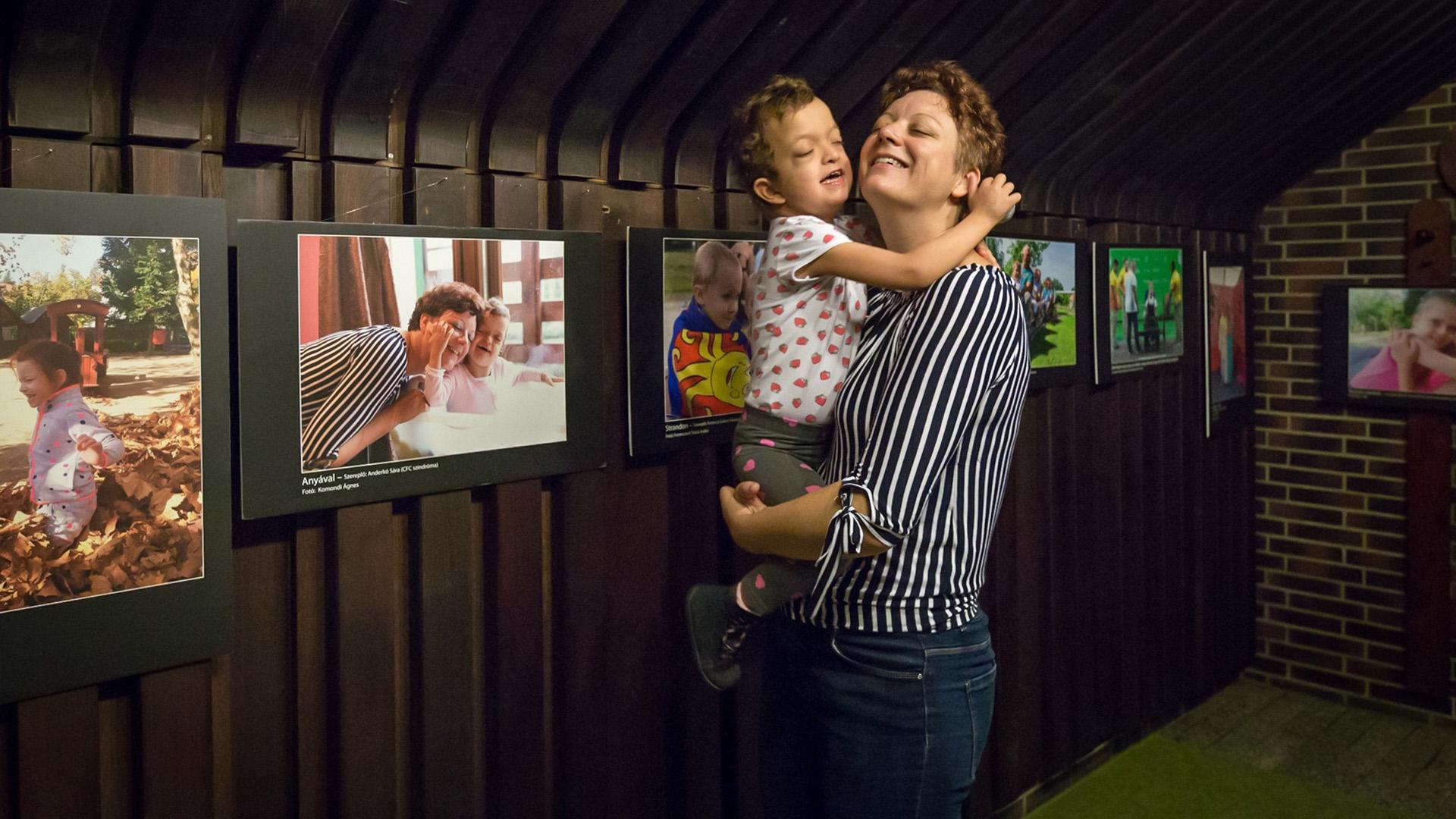 CFC-szindrómás kisgyerek és anyukája élete
